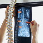 Tot ce trebuie sa stii despre scolioza: cauze, simptome, tratament // Artro Sport Clinic