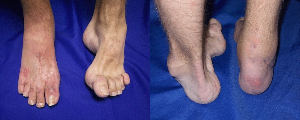 Picioare afectate de boala Charcot Marie Tooth